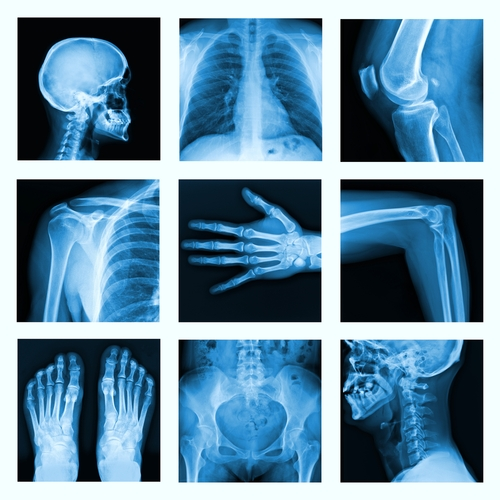 Determining negligence in cases involving catastrophic injury
